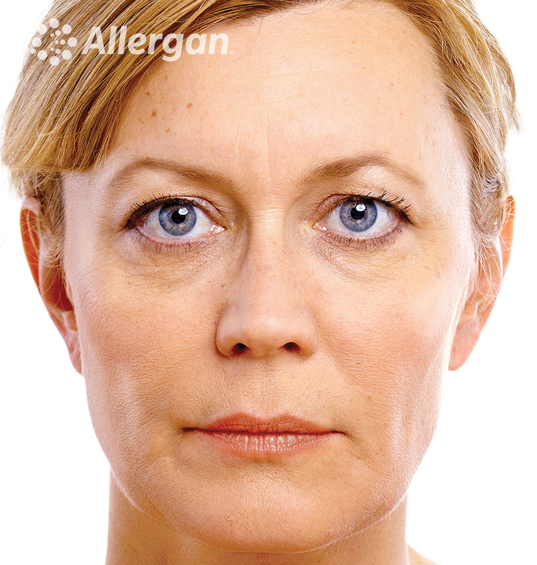 Juvederm | Caucasian female model Blonde 1 After